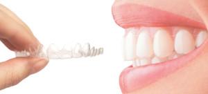 Nevidni zobni aparat je neopazen